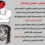 ممرض سعودي يتساءل ننتظر جلد وسجن الأطباء أيضا